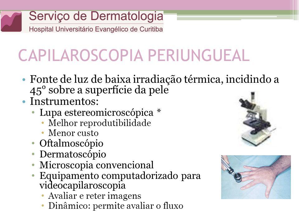 CAPILAROSCOPIA PERIUNGUEAL Fonte de luz de baixa irradiação térmica, incidindo a 45 sobre a superfície da pele Instrumentos: Lupa estereomicroscópica