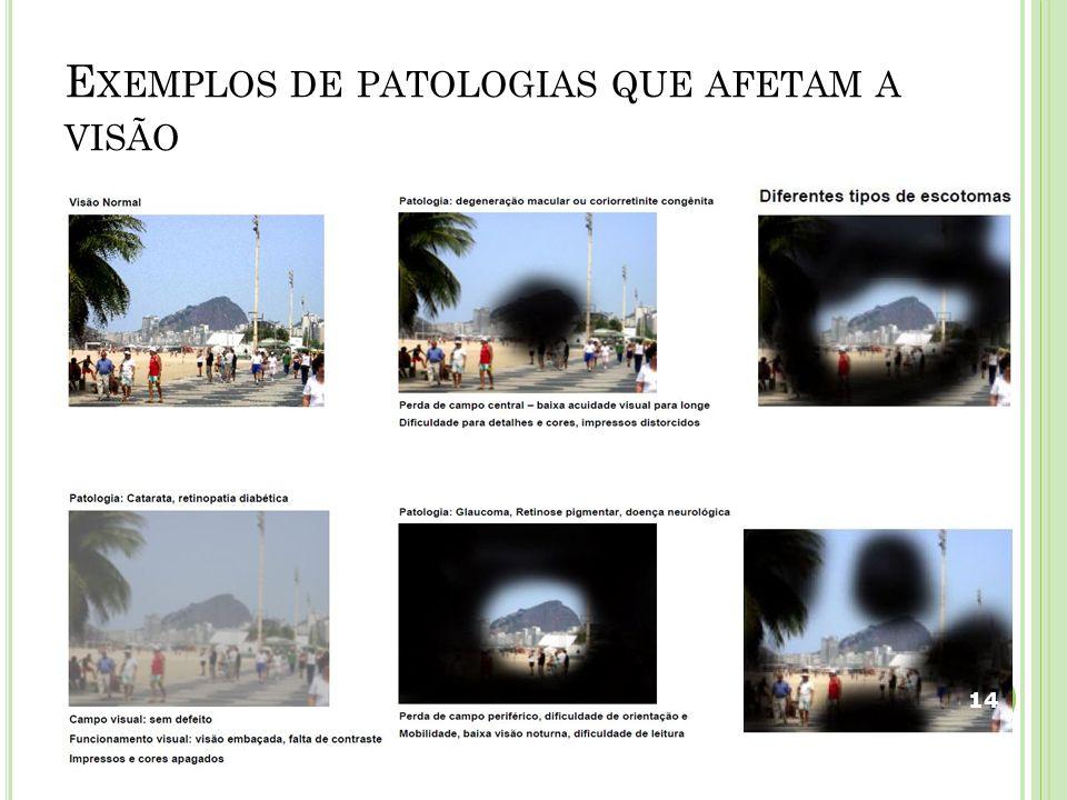 E XEMPLOS DE PATOLOGIAS QUE AFETAM A VISÃO 14