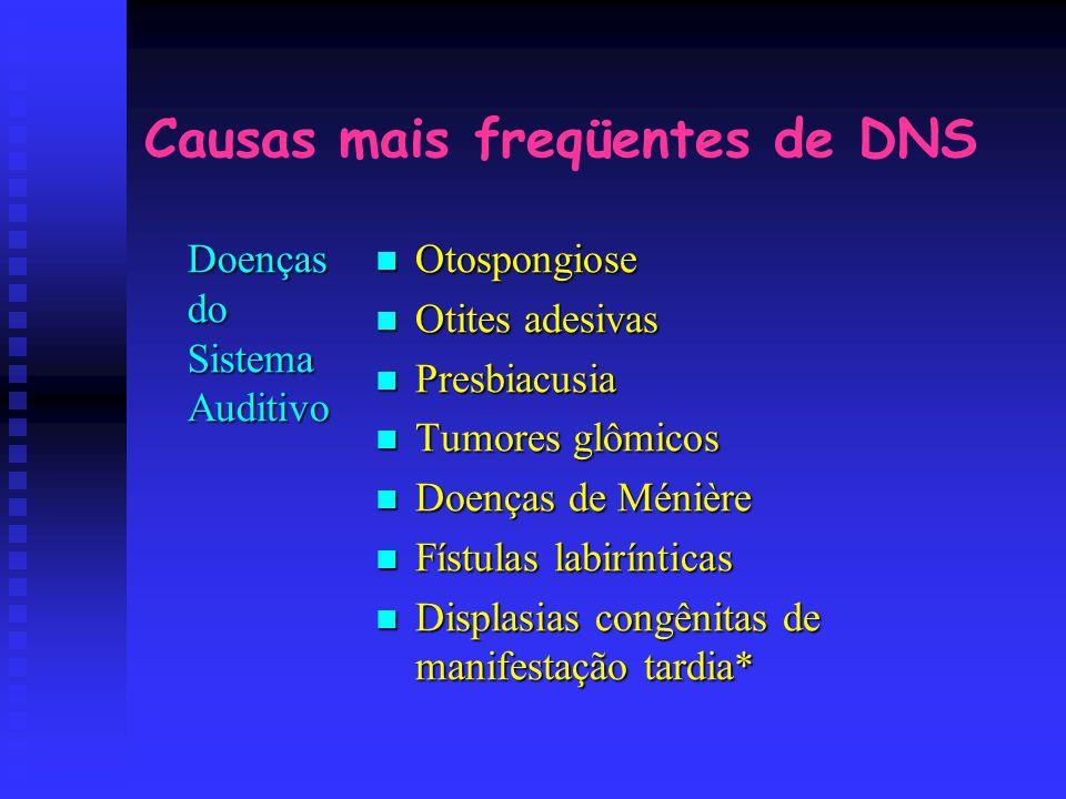 Causas mais freqüentes de DNS Doenças do Sistema Auditivo Otospongiose Otites adesivas Presbiacusia Tumores glômicos Doenças de Ménière Fístulas labir