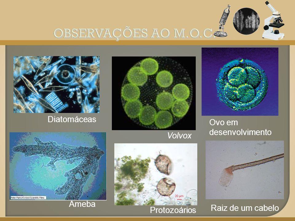 Diatomáceas Ameba Volvox Ovo em desenvolvimento Protozoários Raiz de um cabelo