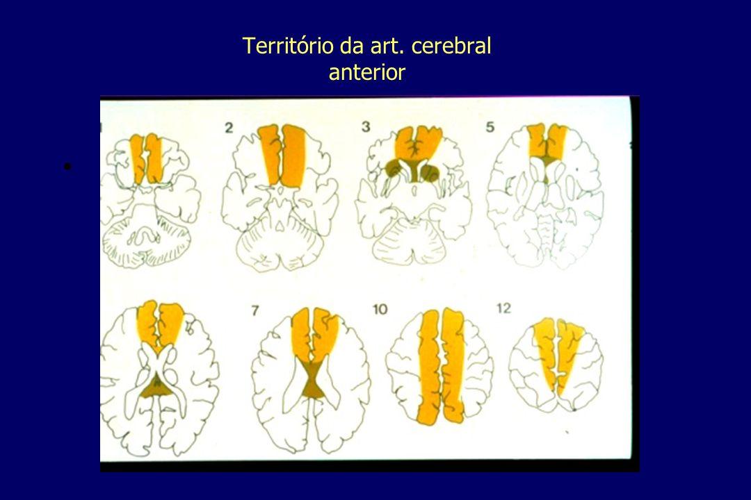 Território da art. cerebral anterior