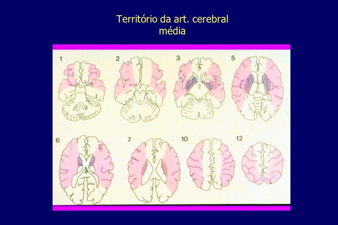Território da art. cerebral média