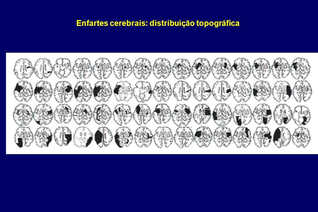 Enfartes cerebrais: distribuição topográfica