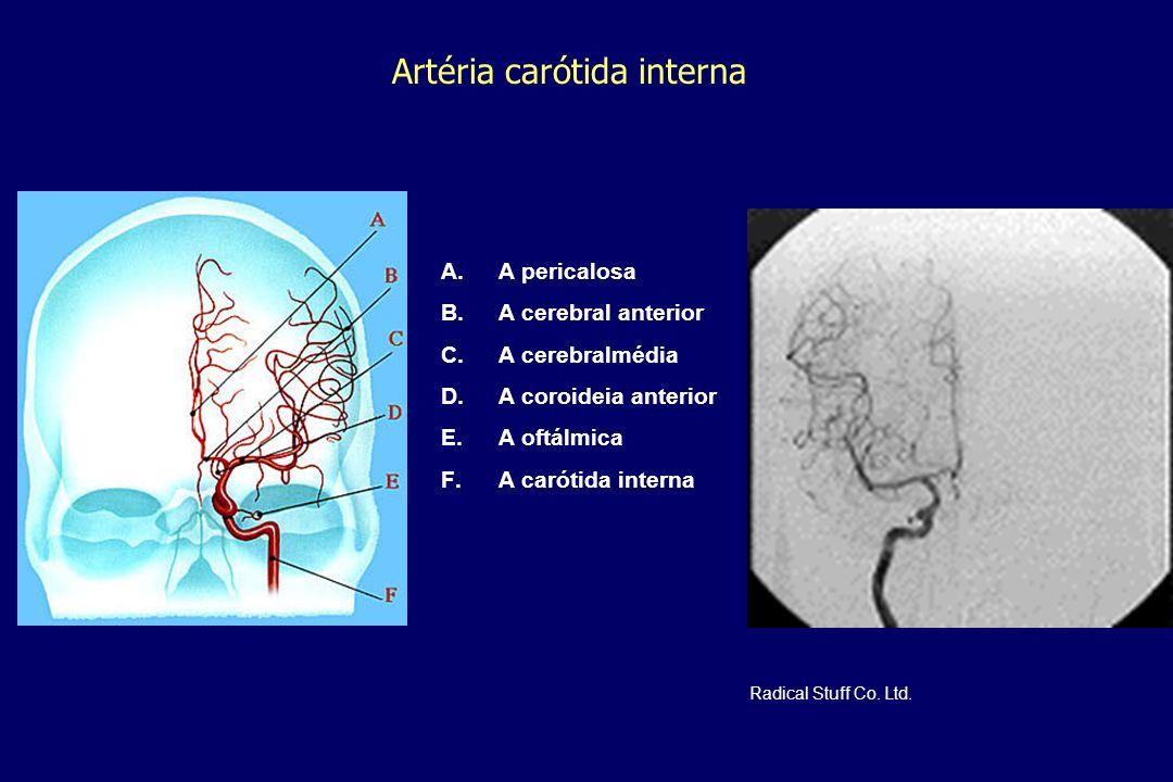 Artéria carótida interna A. A pericalosa B. A cerebral anterior C. A cerebralmédia D. A coroideia anterior E. A oftálmica F. A carótida interna Radica