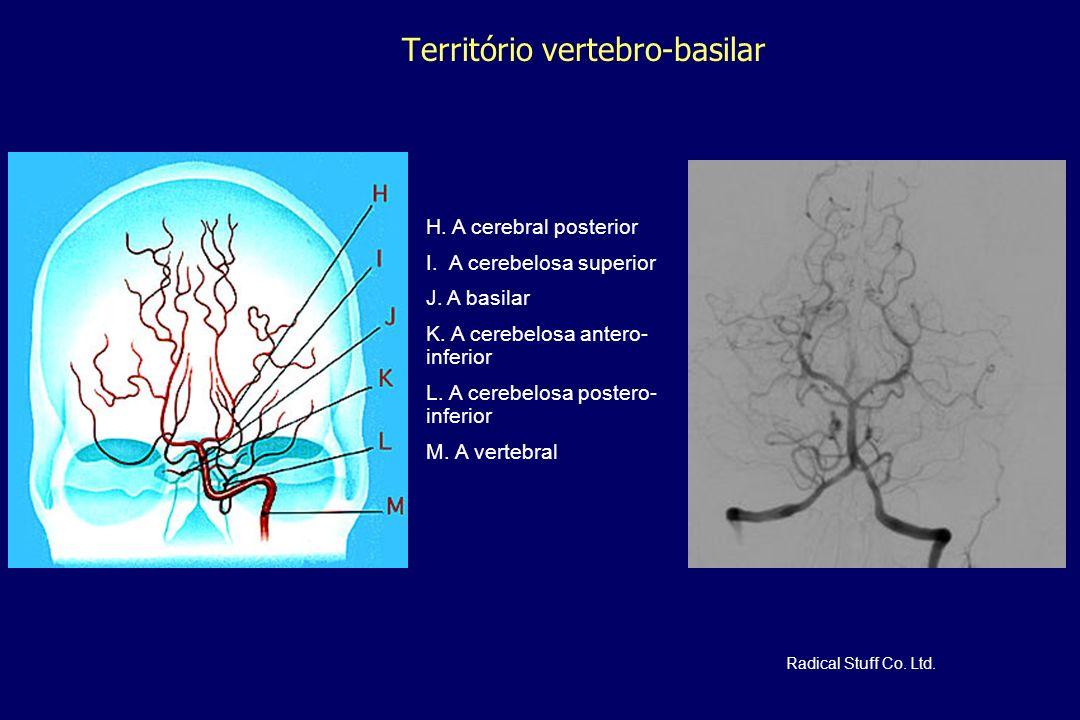 Território vertebro-basilar H. A cerebral posterior I. A cerebelosa superior J. A basilar K. A cerebelosa antero- inferior L. A cerebelosa postero- in