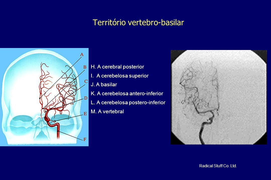 Território vertebro-basilar H. A cerebral posterior I. A cerebelosa superior J. A basilar K. A cerebelosa antero-inferior L. A cerebelosa postero-infe