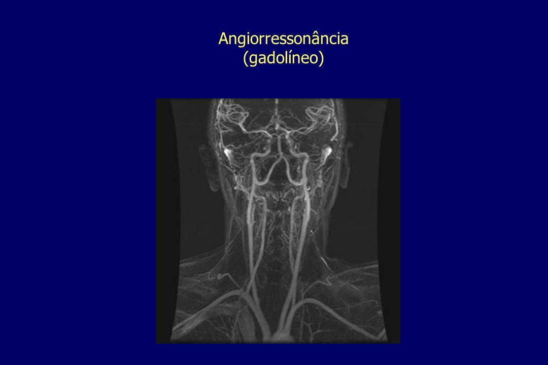 Angiorressonância (gadolíneo)