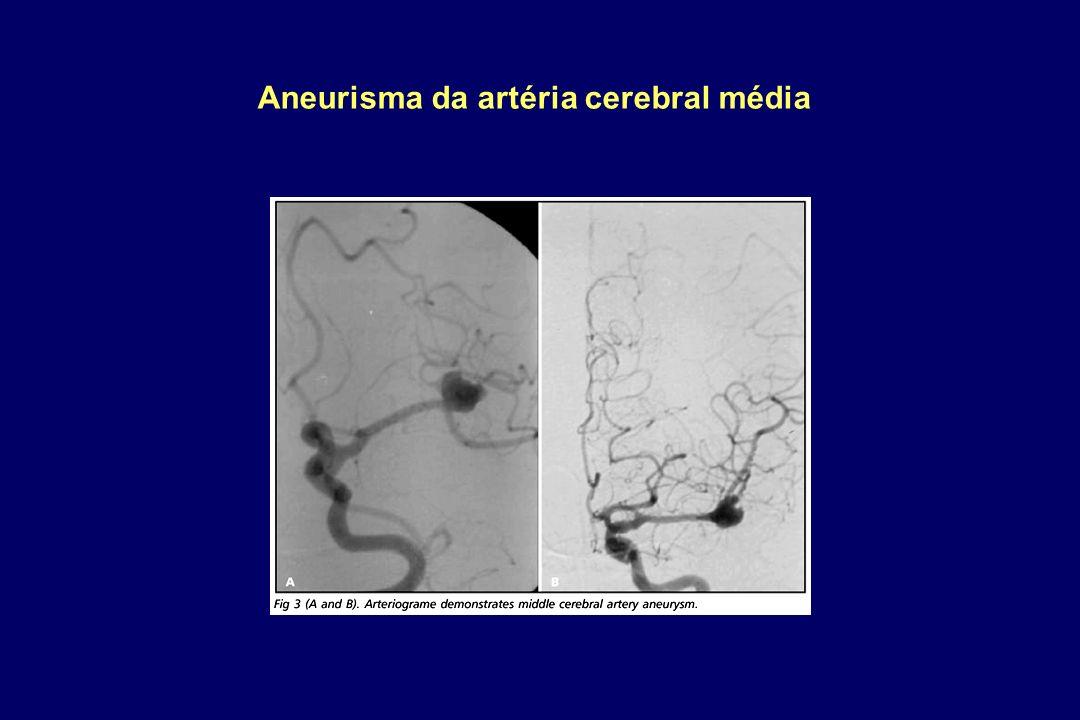 Aneurisma da artéria cerebral média