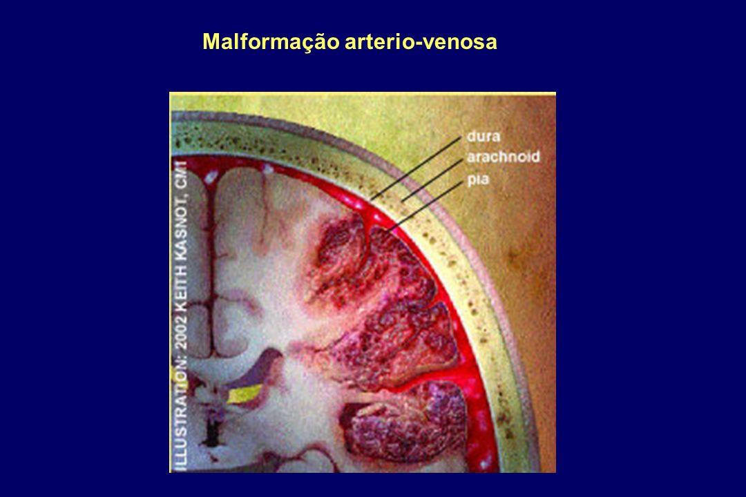 Malformação arterio-venosa