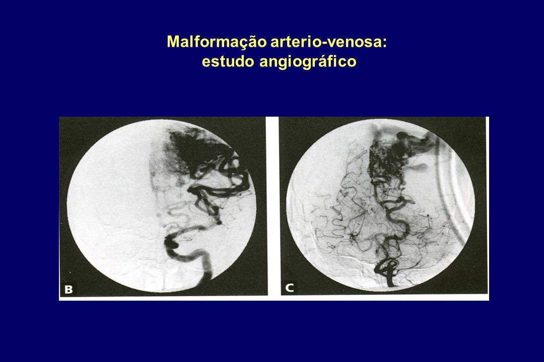 Malformação arterio-venosa: estudo angiográfico