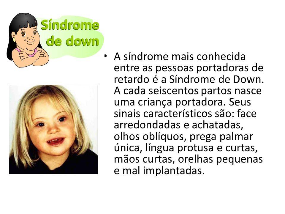 A síndrome mais conhecida entre as pessoas portadoras de retardo é a Síndrome de Down. A cada seiscentos partos nasce uma criança portadora. Seus sina
