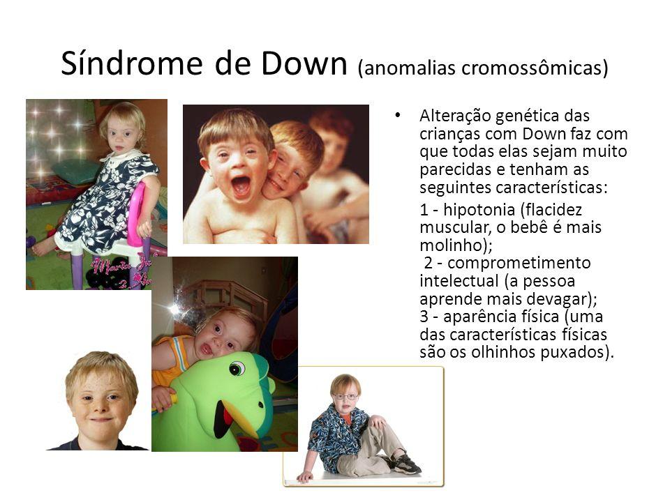 Síndrome de Down (anomalias cromossômicas) Alteração genética das crianças com Down faz com que todas elas sejam muito parecidas e tenham as seguintes