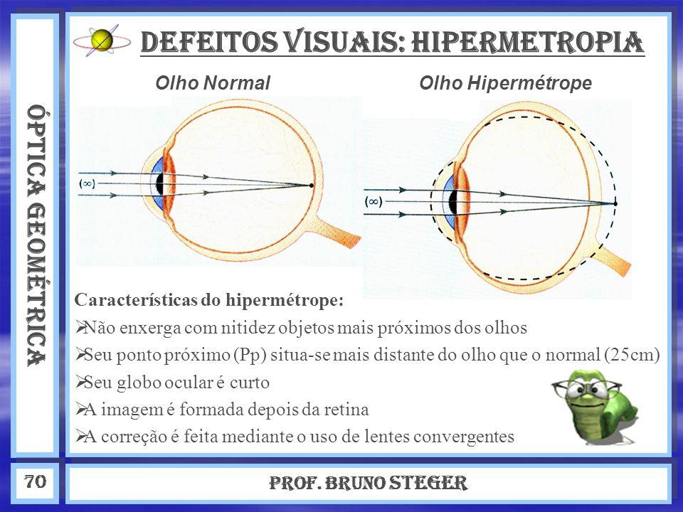 ÓPTICA GEOMÉTRICA Prof. Bruno Steger 70 DEFEITOS VISUAIS: Hipermetropia Olho Normal Características do hipermétrope: N ão enxerga com nitidez objetos