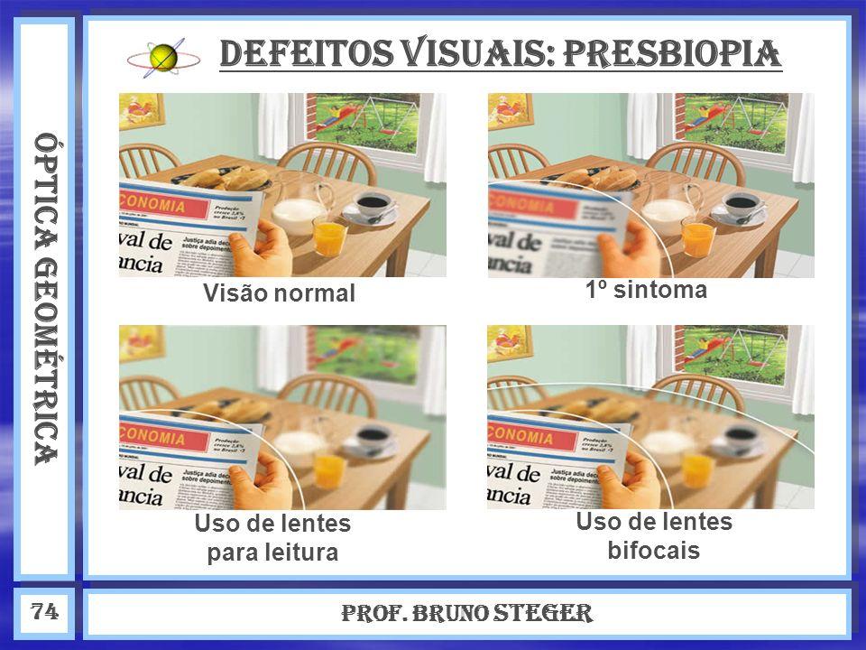 ÓPTICA GEOMÉTRICA Prof. Bruno Steger 74 Defeitos visuais: Presbiopia Visão normal Uso de lentes para leitura Uso de lentes bifocais 1º sintoma