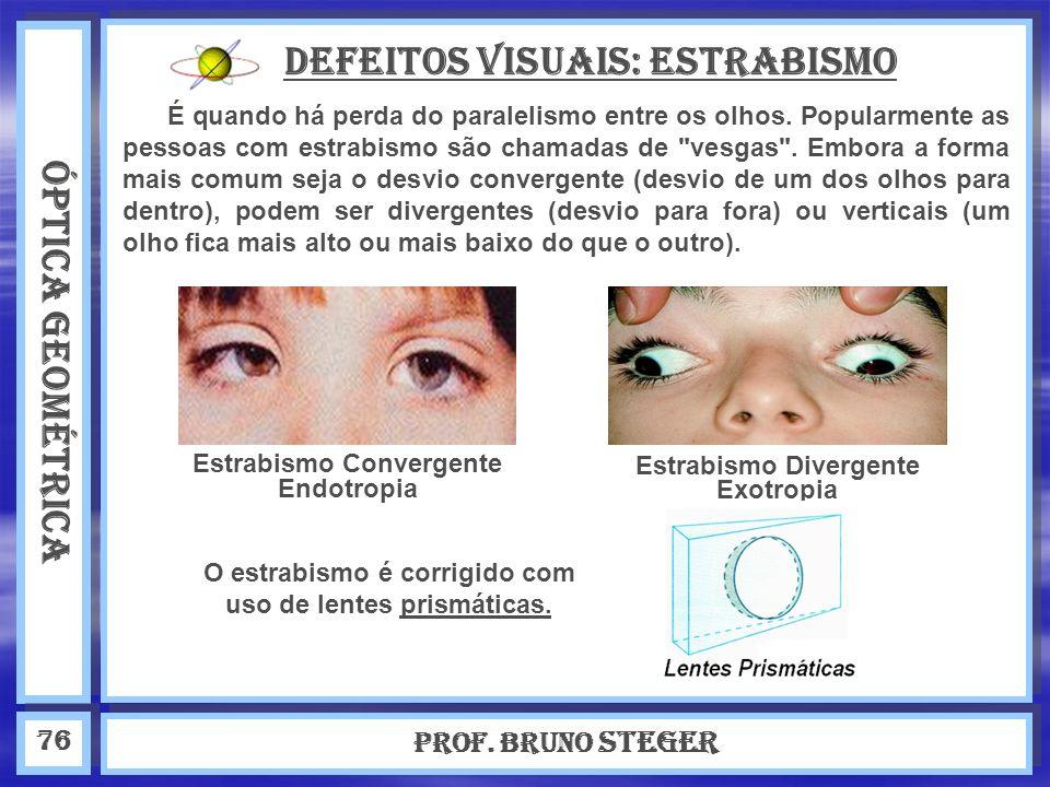 ÓPTICA GEOMÉTRICA Prof. Bruno Steger 76 Defeitos visuais: estrabismo É quando há perda do paralelismo entre os olhos. Popularmente as pessoas com estr