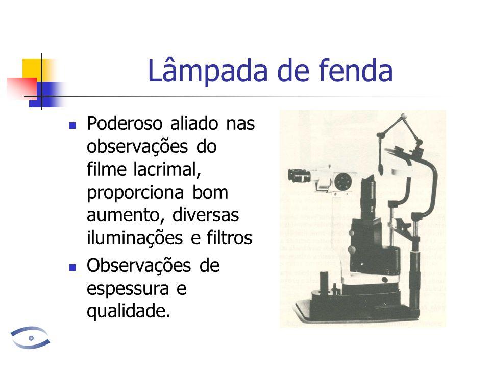 Lâmpada de fenda Poderoso aliado nas observações do filme lacrimal, proporciona bom aumento, diversas iluminações e filtros Observações de espessura e