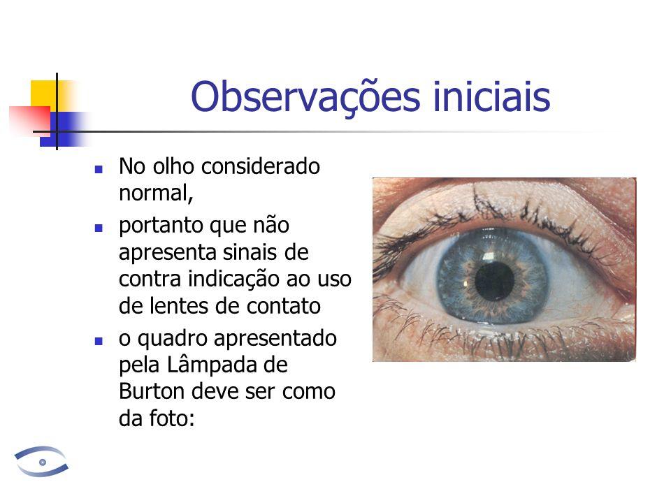 Observações iniciais No olho considerado normal, portanto que não apresenta sinais de contra indicação ao uso de lentes de contato o quadro apresentad