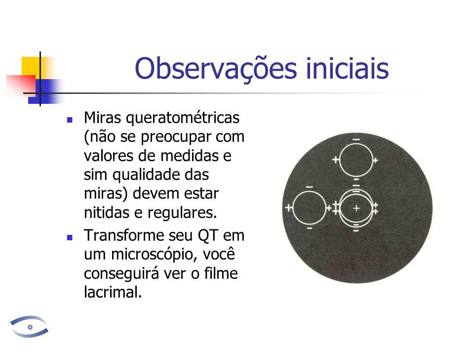 Observações iniciais Miras queratométricas (não se preocupar com valores de medidas e sim qualidade das miras) devem estar nitidas e regulares. Transf