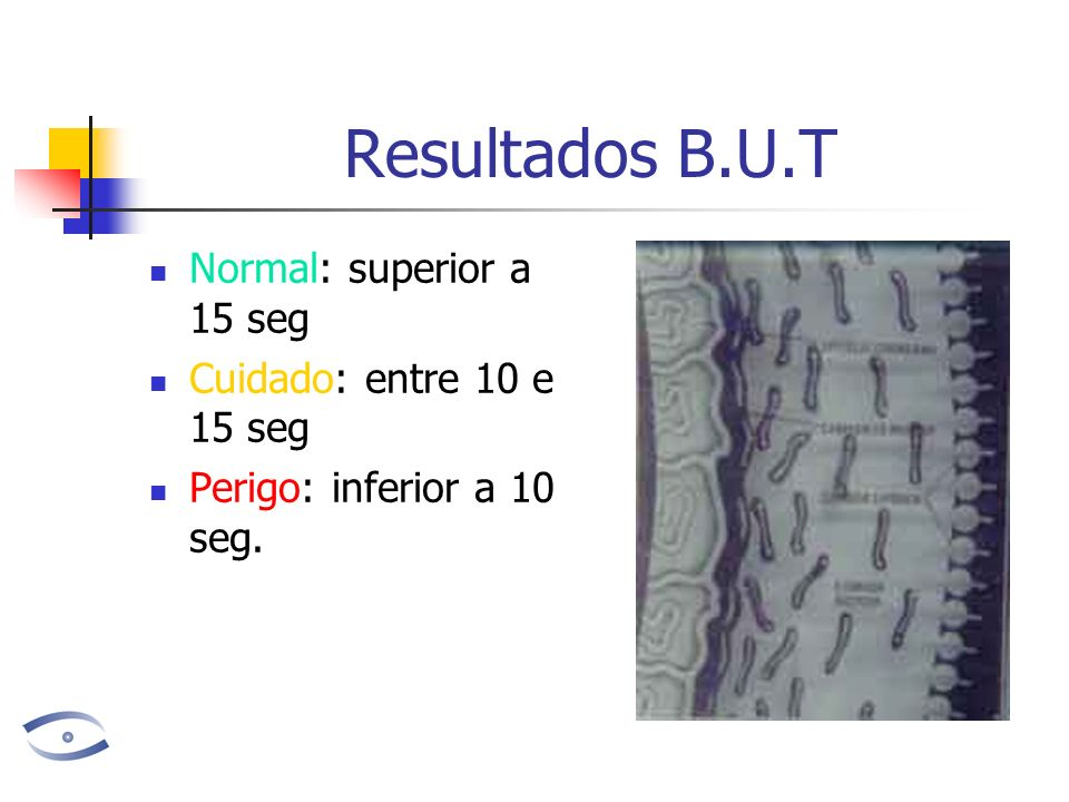 Resultados B.U.T Normal: superior a 15 seg Cuidado: entre 10 e 15 seg Perigo: inferior a 10 seg.