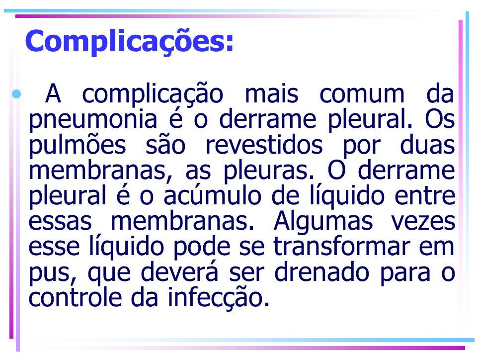 Complicações: A complicação mais comum da pneumonia é o derrame pleural. Os pulmões são revestidos por duas membranas, as pleuras. O derrame pleural é