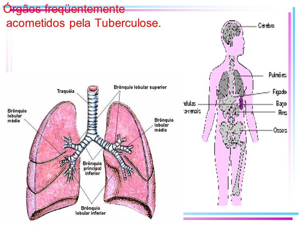 Órgãos freqüentemente acometidos pela Tuberculose.