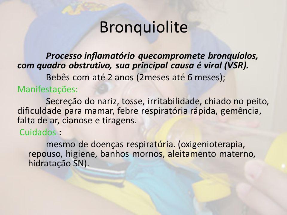 Bronquiolite Processo inflamatório quecompromete bronquíolos, com quadro obstrutivo, sua principal causa é viral (VSR). Bebês com até 2 anos (2meses a