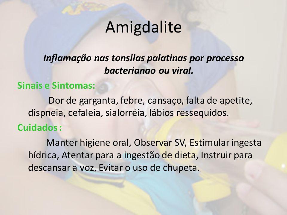 Amigdalite Inflamação nas tonsilas palatinas por processo bacterianao ou viral. Sinais e Sintomas: Dor de garganta, febre, cansaço, falta de apetite,