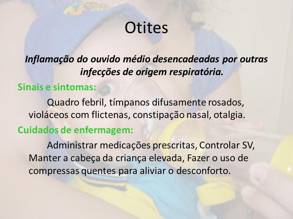 Otites Inflamação do ouvido médio desencadeadas por outras infecções de origem respiratória. Sinais e sintomas: Quadro febril, tímpanos difusamente ro