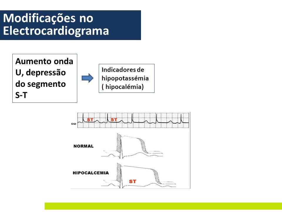 Modificações no Electrocardiograma Aumento onda U, depressão do segmento S-T Indicadores de hipopotassémia ( hipocalémia)