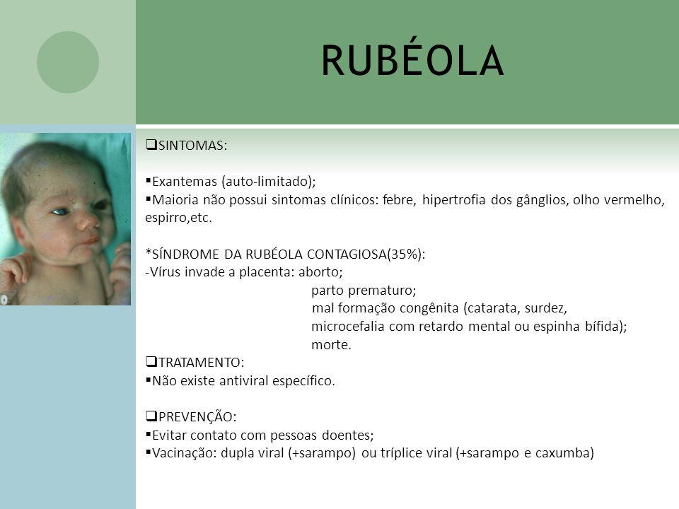 RUBÉOLA SINTOMAS: Exantemas (auto-limitado); Maioria não possui sintomas clínicos: febre, hipertrofia dos gânglios, olho vermelho, espirro,etc. *SÍNDR