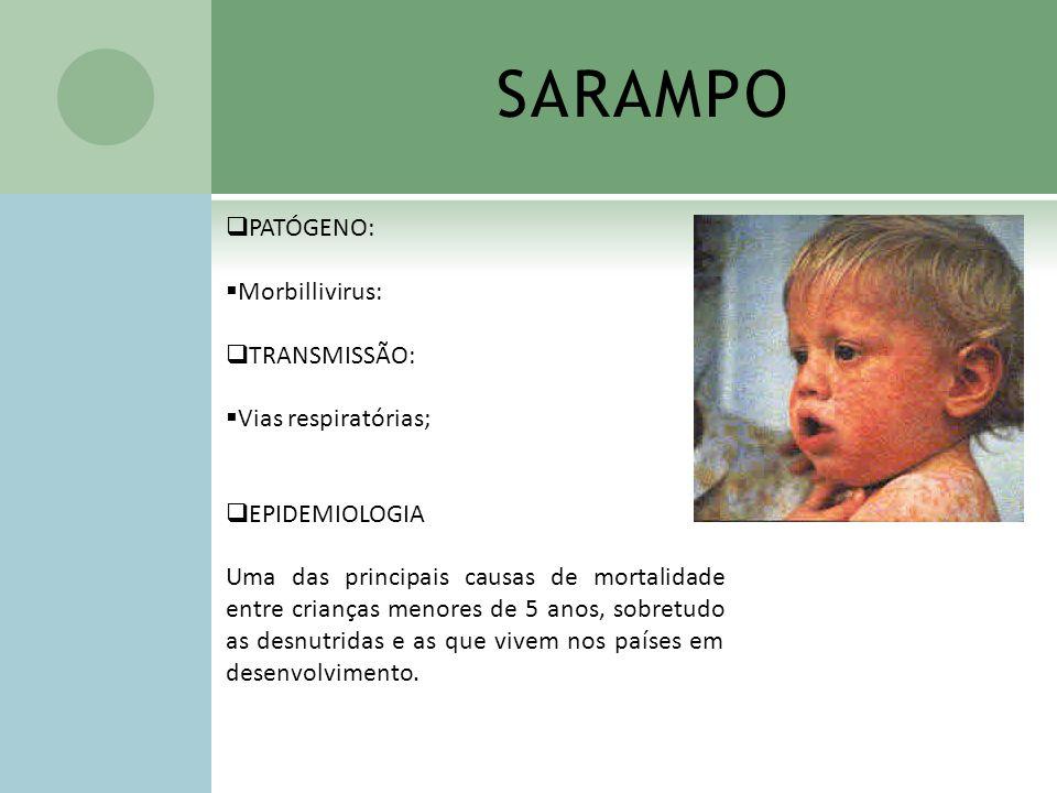 SARAMPO PATÓGENO: Morbillivirus: TRANSMISSÃO: Vias respiratórias; EPIDEMIOLOGIA Uma das principais causas de mortalidade entre crianças menores de 5 a