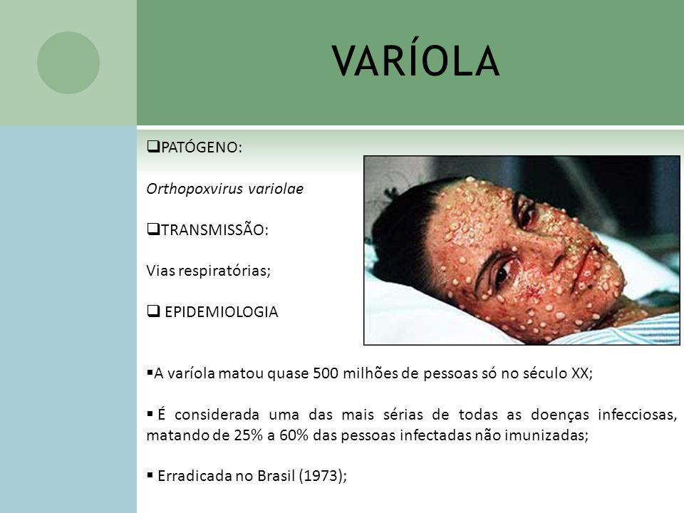 VARÍOLA PATÓGENO: Orthopoxvirus variolae TRANSMISSÃO: Vias respiratórias; EPIDEMIOLOGIA A varíola matou quase 500 milhões de pessoas só no século XX;