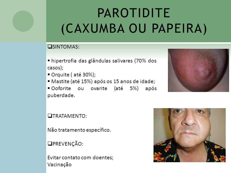 PAROTIDITE (CAXUMBA OU PAPEIRA) SINTOMAS: hipertrofia das glândulas salivares (70% dos casos); Orquite ( até 30%); Mastite (até 15%) após os 15 anos d