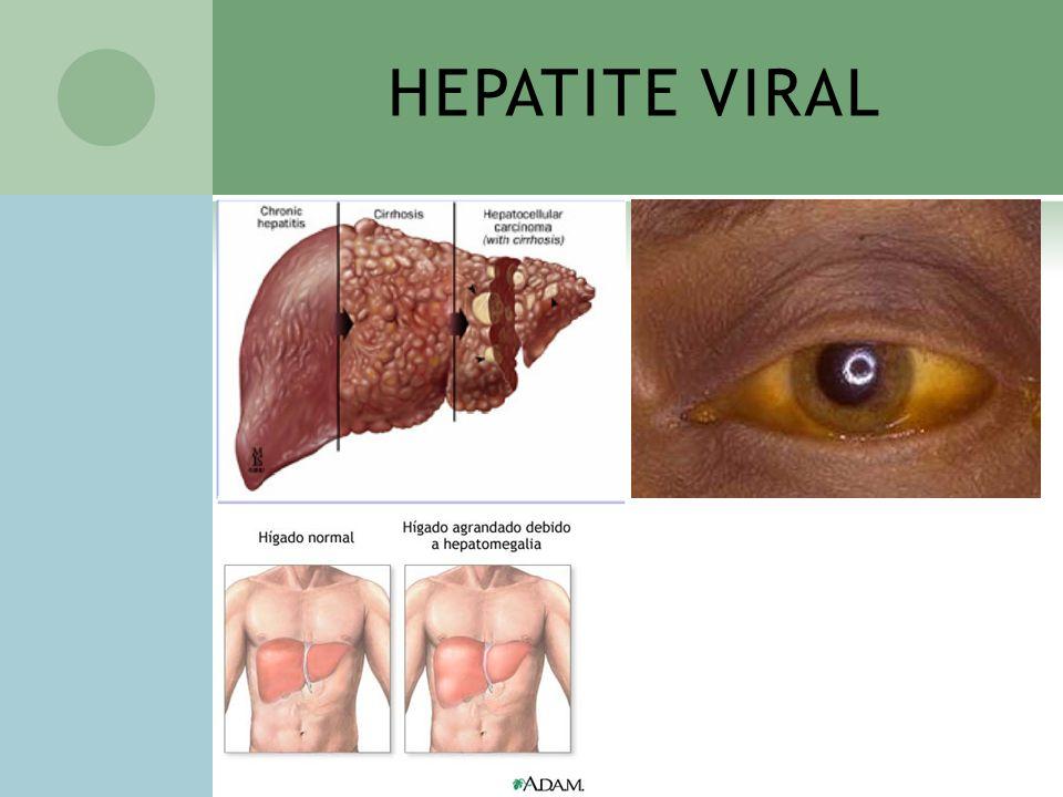 HEPATITE VIRAL