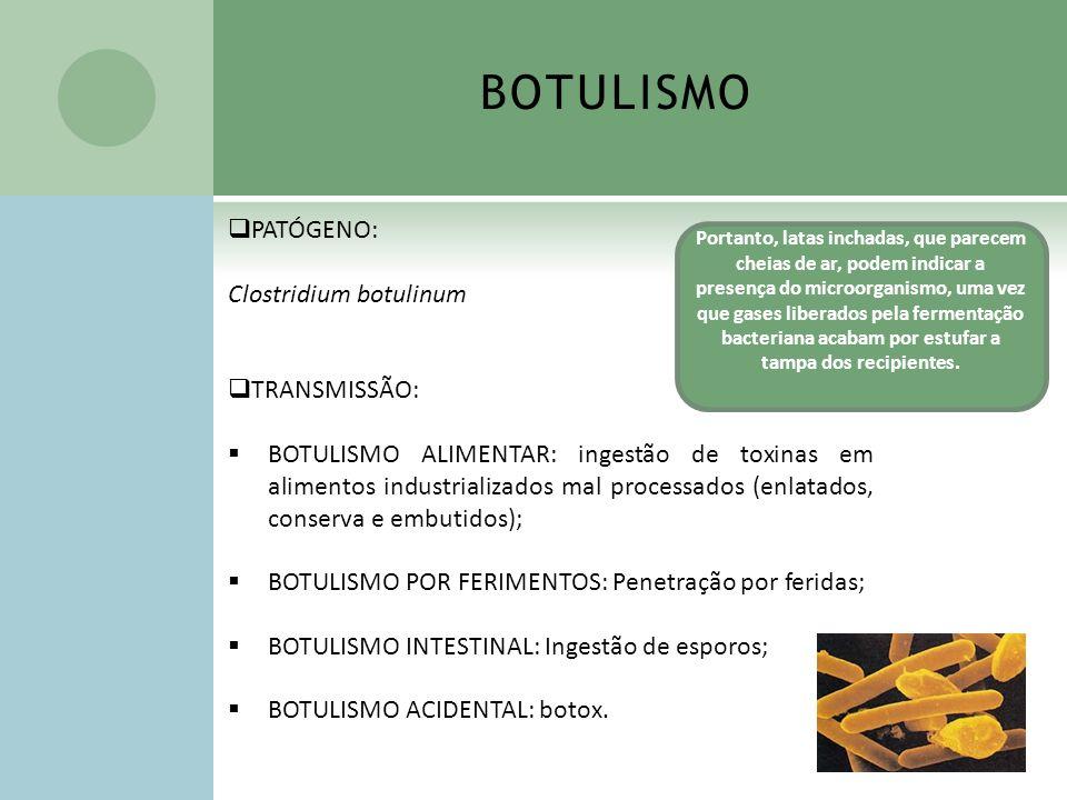 BOTULISMO PATÓGENO: Clostridium botulinum TRANSMISSÃO: BOTULISMO ALIMENTAR: ingestão de toxinas em alimentos industrializados mal processados (enlatad