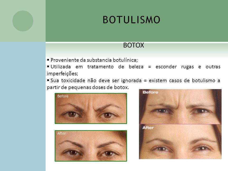 BOTULISMO BOTOX Proveniente da substancia botulínica; Utilizada em tratamento de beleza = esconder rugas e outras imperfeições; Sua toxicidade não dev