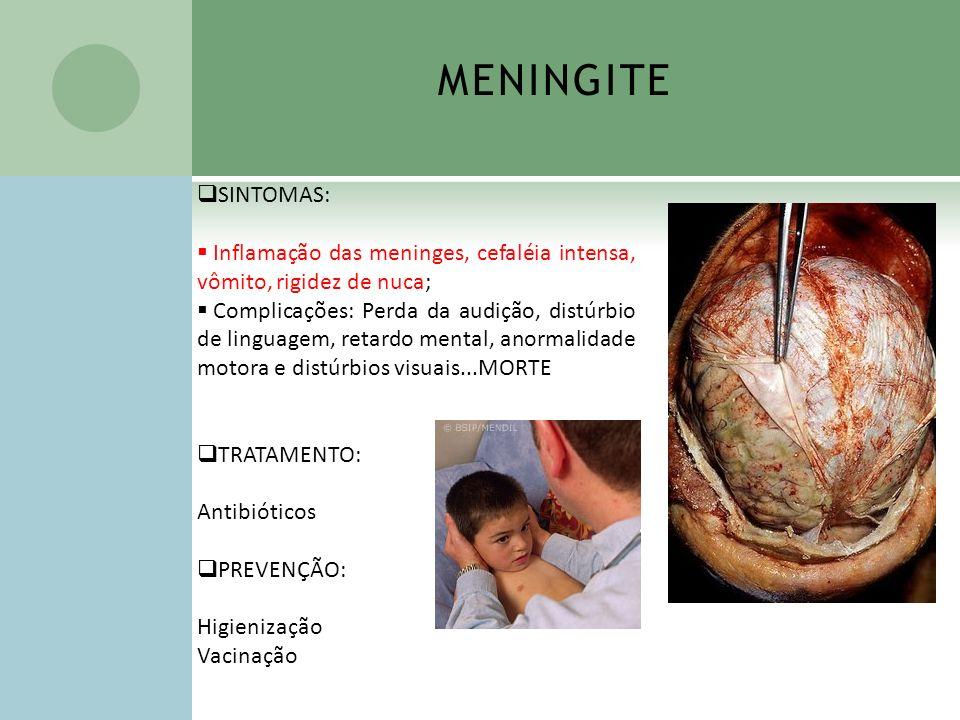 SINTOMAS: Inflamação das meninges, cefaléia intensa, vômito, rigidez de nuca; Complicações: Perda da audição, distúrbio de linguagem, retardo mental,