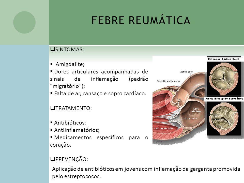 FEBRE REUMÁTICA SINTOMAS: Amigdalite; Dores articulares acompanhadas de sinais de inflamação (padrão