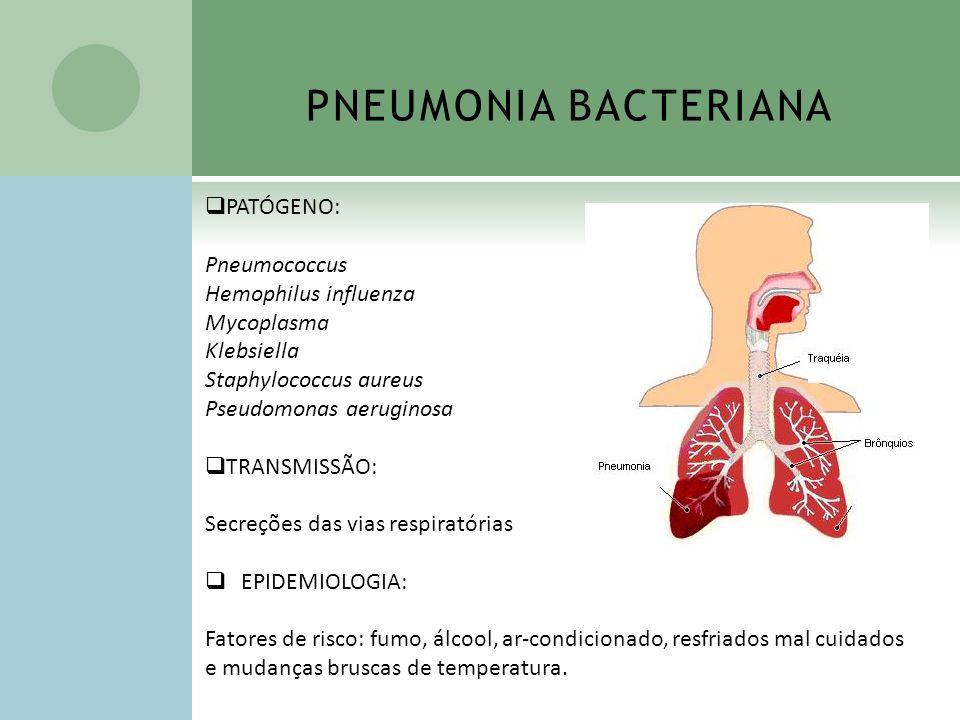 PNEUMONIA BACTERIANA PATÓGENO: Pneumococcus Hemophilus influenza Mycoplasma Klebsiella Staphylococcus aureus Pseudomonas aeruginosa TRANSMISSÃO: Secre