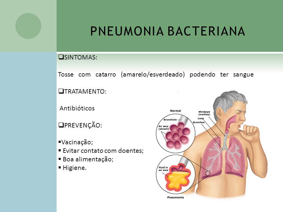 PNEUMONIA BACTERIANA SINTOMAS: Tosse com catarro (amarelo/esverdeado) podendo ter sangue TRATAMENTO: Antibióticos PREVENÇÃO: Vacinação; Evitar contato