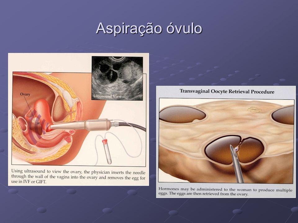 Aspiração óvulo