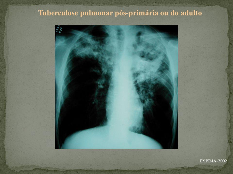 ESPINA-2002 Tuberculose pulmonar pós-primária ou do adulto
