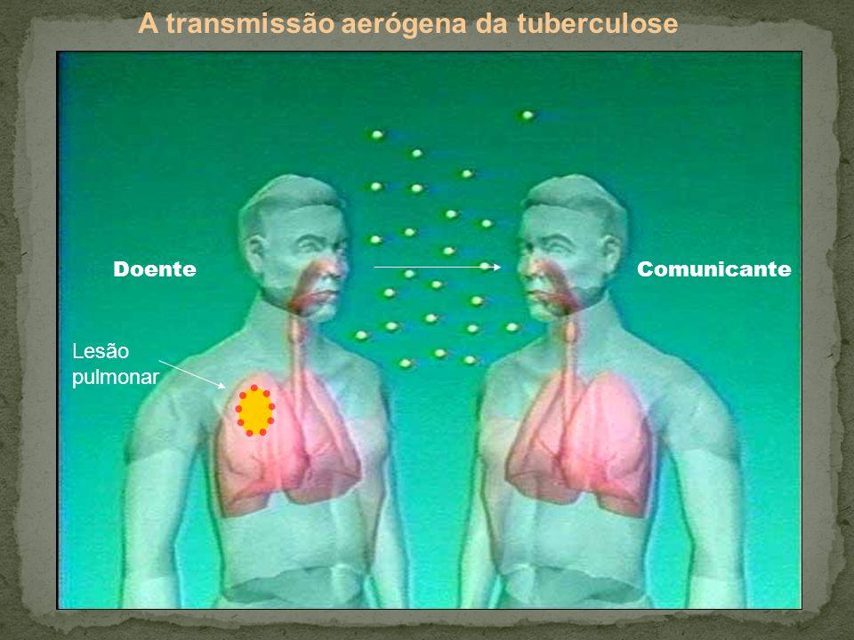 A transmissão aerógena da tuberculose DoenteComunicante Lesão pulmonar
