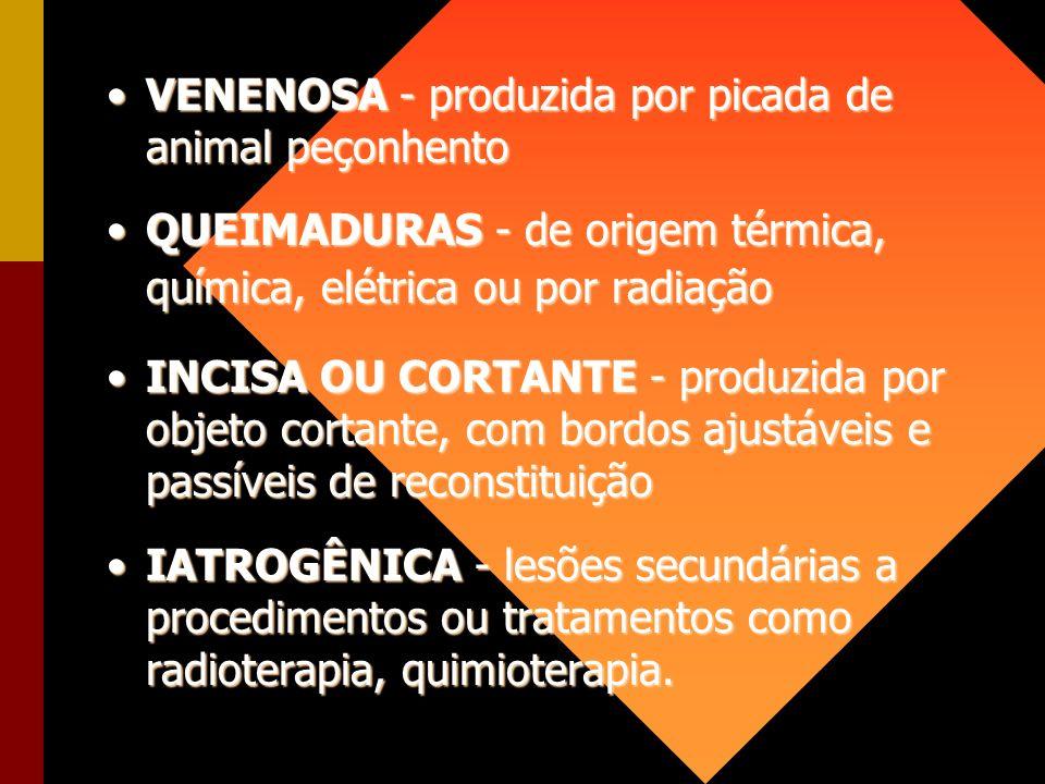 VENENOSA - produzida por picada de animal peçonhentoVENENOSA - produzida por picada de animal peçonhento QUEIMADURAS - de origem térmica, química, elé