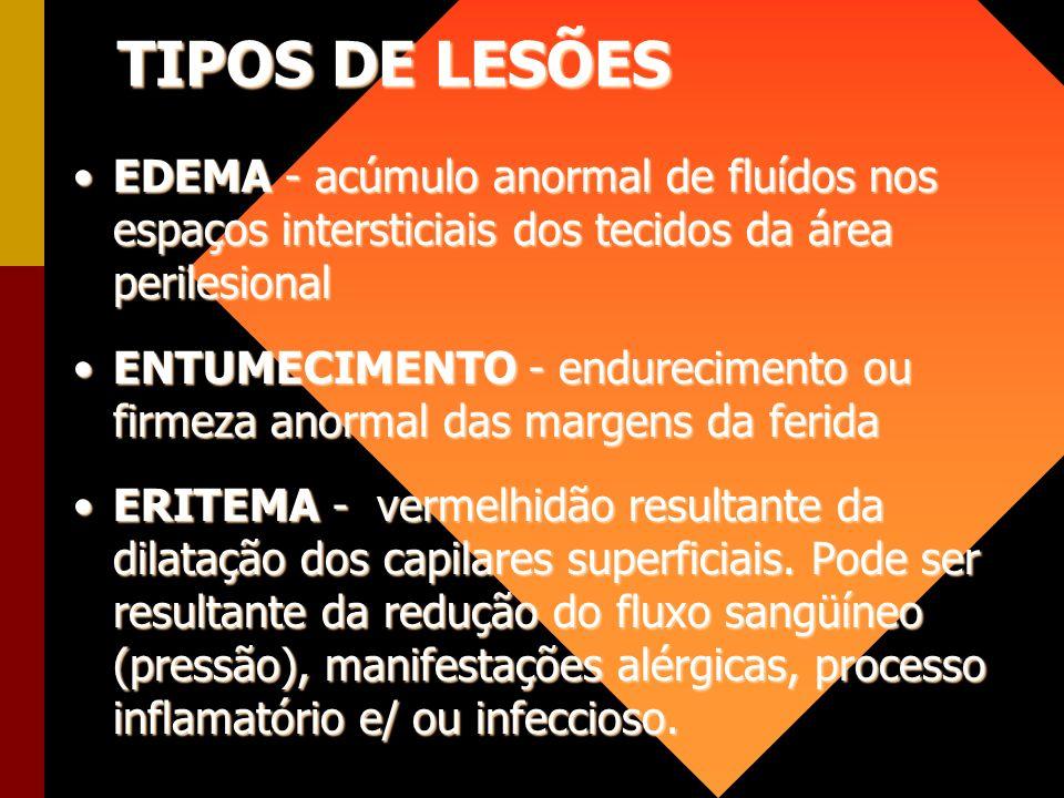 TIPOS DE LESÕES EDEMA - acúmulo anormal de fluídos nos espaços intersticiais dos tecidos da área perilesionalEDEMA - acúmulo anormal de fluídos nos es