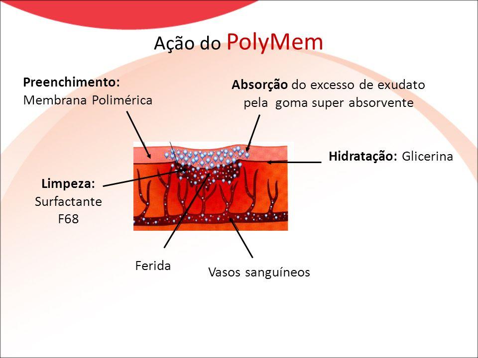 Ação do PolyMem Preenchimento: Membrana Polimérica Absorção do excesso de exudato pela goma super absorvente Ferida Hidratação: Glicerina Vasos sanguí