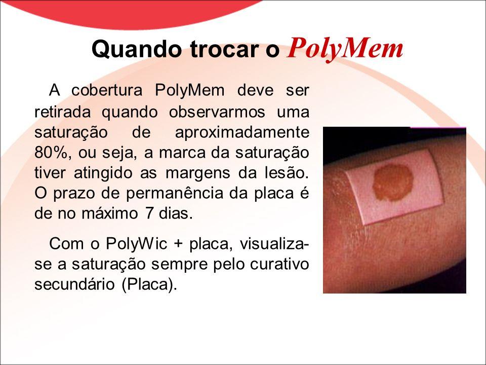 Quando trocar o PolyMem A cobertura PolyMem deve ser retirada quando observarmos uma saturação de aproximadamente 80%, ou seja, a marca da saturação t