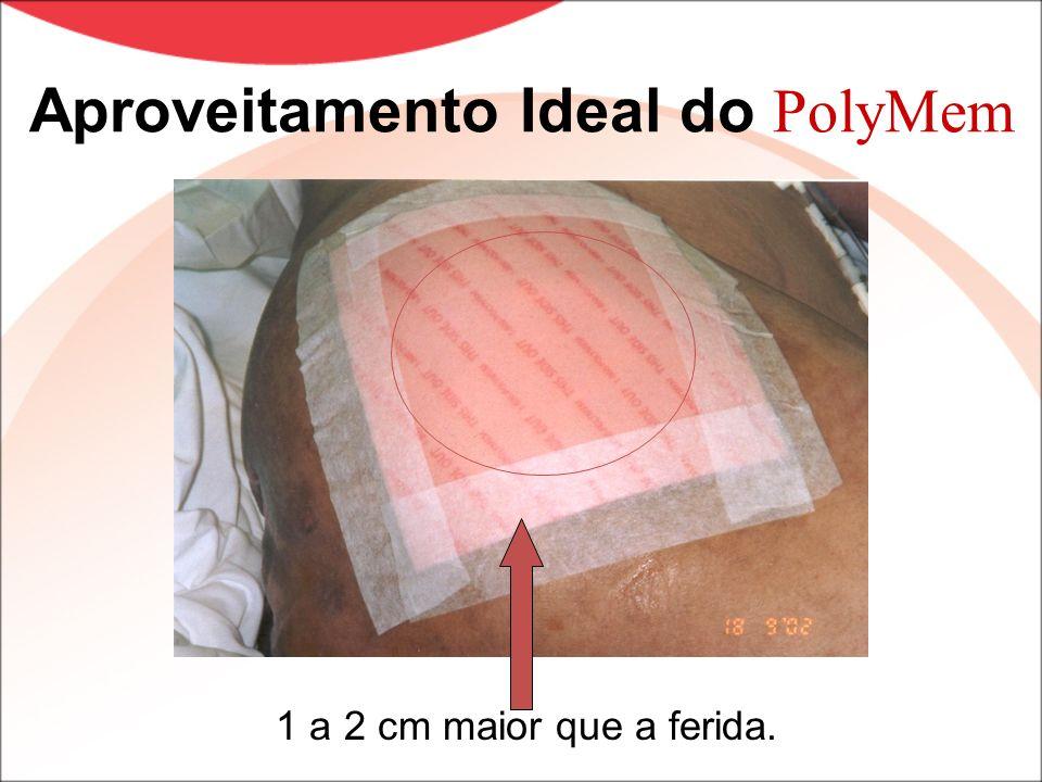 Aproveitamento Ideal do PolyMem 1 a 2 cm maior que a ferida.