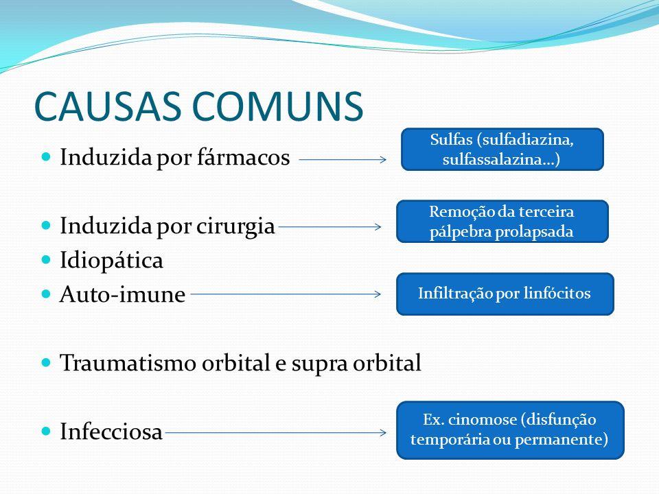 CAUSAS COMUNS Induzida por fármacos Induzida por cirurgia Idiopática Auto-imune Traumatismo orbital e supra orbital Infecciosa Sulfas (sulfadiazina, s