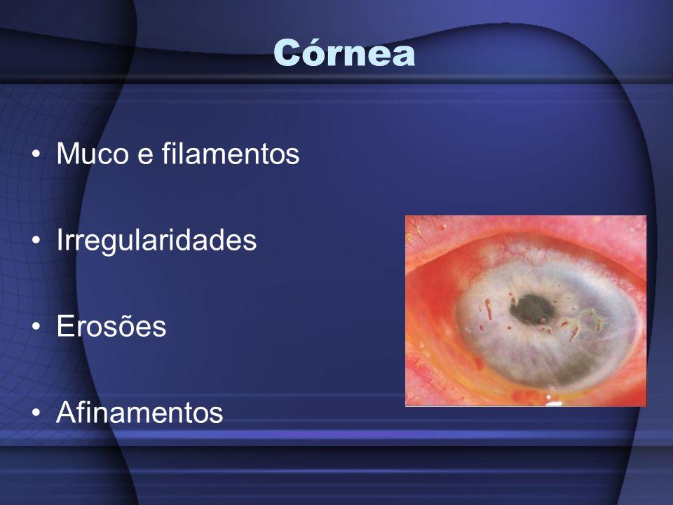 Menisco lacrimal Medido na borda palpebral inf. – 0,2 mm Brilho Uniformidade ( muco e bolhas )